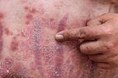 Psoriasis is an autoimmune disease that affects the skin cause skin inflammation red and scaly. poster