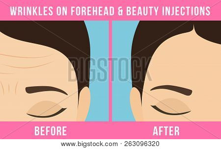 Womens Anti-aging Skin Care. Different Types Of Facial Wrinkles. Woman Before And After Botox Inject