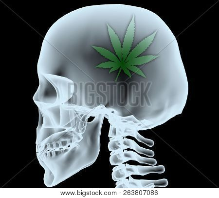 X-ray Of A Head With The Marijuana Leaf Instead Of The Brain, 3d Illustration