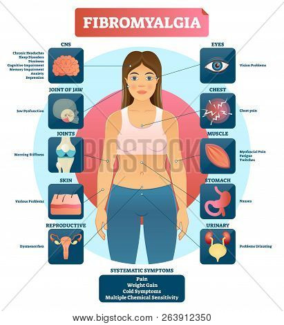 Fibromyalgia Vector Illustration. Diagnosis Symptoms Labeled Diagram. Problems With Jaw, Joints, Ski