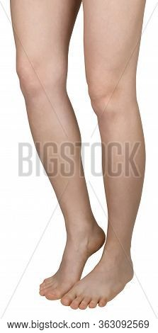 Bare Feet Of A Girl With Flat Feet, Barefoot, One Leg On Tiptoe, Half-side View, Isolated On White B