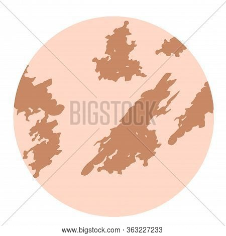 Pigmentation On The Skin Background. A Pigmented Spot On The Skin Of The Face. Vector Illustration