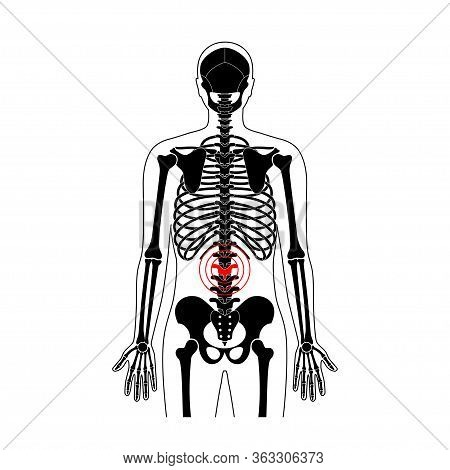 Human Spine Pain And Skeleton Vector Illustration. Back Bone And Vertebral Column Injury. Symbol Of