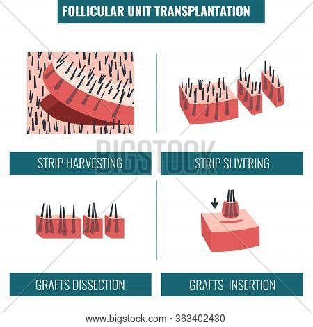 Fut Hair Transplantation Procedure Stages Medical Infographics
