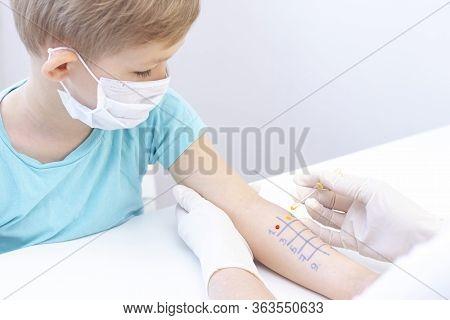 Allergen Test On Hand. Child Undergoing Procedure Of Allergen Skin Test In Clinic.