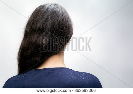 The Woman Is A Brunette With Her Hair Pulled Back To One Side, And Her Shoulders Are Bare, Where Dan