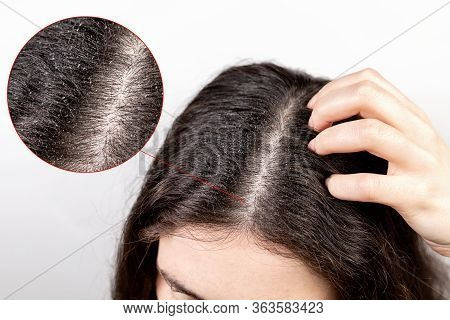 The Woman Scratches Her Head With Her Hand, Showing A Parting Of Dark Hair With Dandruff.close Up.th