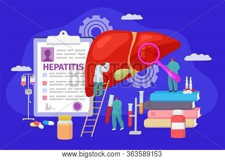 Hepatitis Concept Treatment, Vector Illustration. Doctors Character Research Patinet Liver Disease.