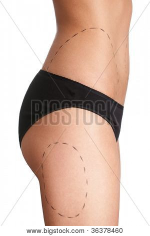 Body correction with the help of plastic surgery, isolated, white background, side view