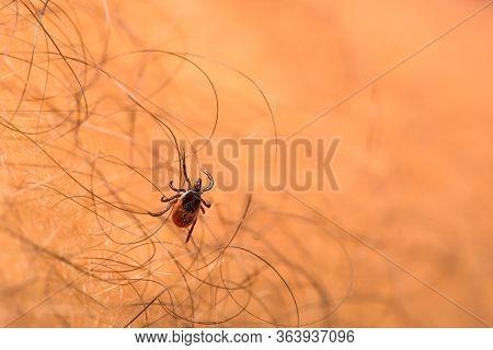 Tick - parasitic arachnid blood-sucking carrier of various diseases