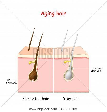 Aging Process Through Gray Hair. Pigmanted And Gray Hair. The Stem Cells At The Hair Follicles Produ
