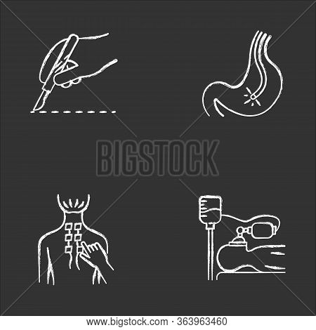 Medical Procedure Chalk Icons Set. Surgery. Endoscopy And Gastroscopy. Digestive Tract Check. Physio