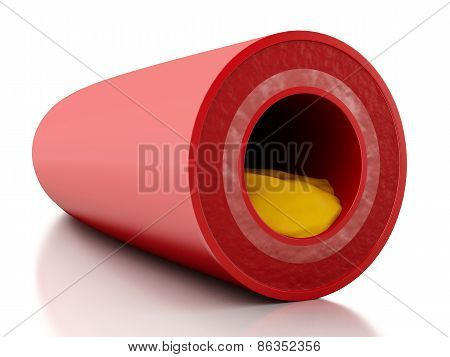 3d illustration. Cholesterol plaque in artery. Isolated white background poster