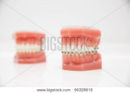 Model of human jaw with wire braces attached. Dental and orthodontic office presentation tool isolated on white background. poster