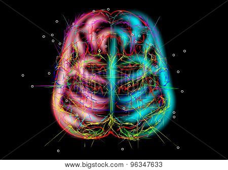 Brain Mysteries