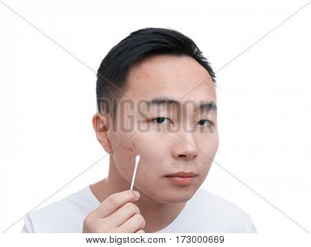 Young Asian man with problem skin and cotton bud on white background