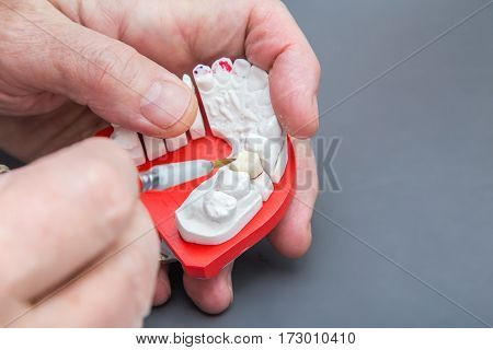 Dentist hands with brush working on ceramic dental model. Close up.