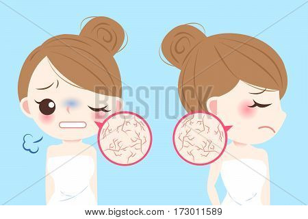 cartoon woman with skin dry and feel bad