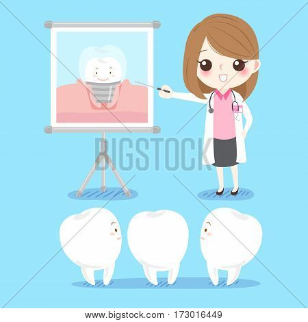 cute cartoon dentist with tooth and implant