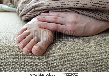 Dry cracked skin of woman feet in bed. Foot treatment.
