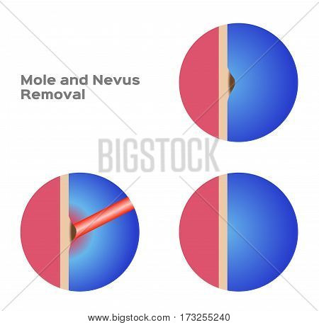 mole and nevus removal vector on white background