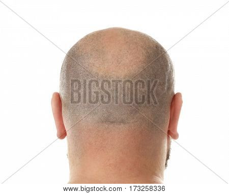 Bald adult man on white background
