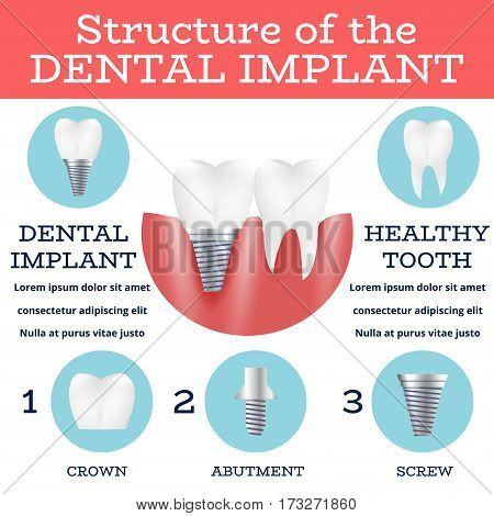 Dental Implant Structure Logo Surgery Dentistry Vector Illustration. Medical Conception for Tooth Clinic.Tooth Implant Clean Enamel on Green Blur Pattern.Implant Crown and Abutment for Dental Clinic