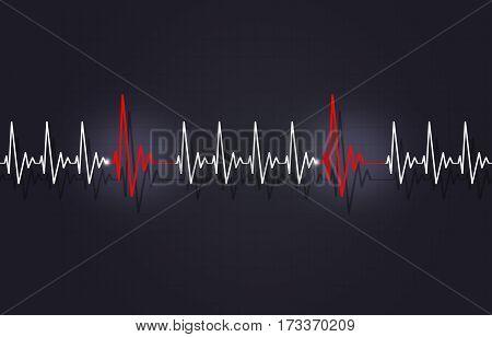 Tachycardia With Arrythmia