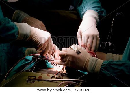 hands of surgeons in operation room