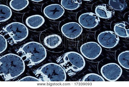 mutiple magnetic resonance image of brain and cranium