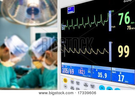 patient cardiogram monitoring in operation room