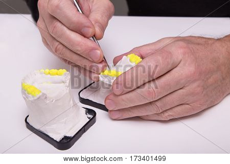 Technical shots of model on a dental prothetic laboratory. Dentist hands with model.