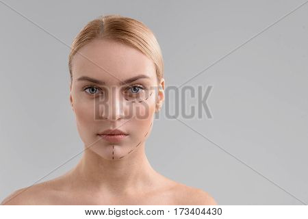 Aesthetic surgery. Confident young woman with correction lines under her eye and on chin. Isolated and copy space in right side