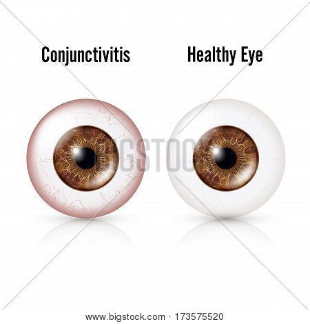 Conjunctivitis. Red Eye. Healthy Eye And Eyeball with Conjunctivitis. Vector