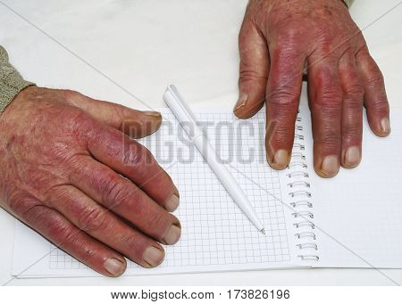 Closeup of the wrinkled hands of an old caucasian man holding pen and paper