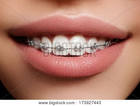 Beautiful White Teeth With Braces. Dental Care Photo. Woman Smile With Ortodontic Accessories. Ortho