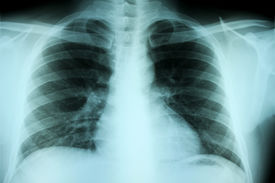 Adult Chest X-ray