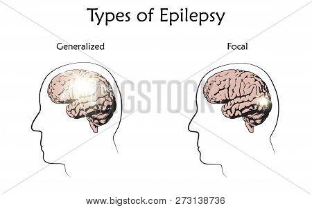 Types Of Epilepsy. Vector Medical Illustration. Generalized, Focal Seizures. White Background, Line