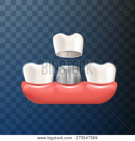 Realistic Illustration Dental Crown In 3d Vector. Process Installing Tooth Crown With An Orthodontic