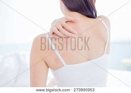 Woman Scratching Her Shoulder And Neck Because Of Dry Skin At Home