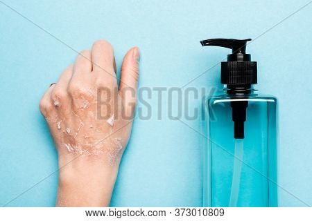 Partial View Of Female Hand With Exfoliated, Dry Skin Near Sanitizer On Blue