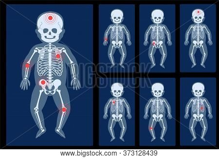 Set Of Human Child Skeleton Anatomy In Front On X Ray View. Pain, Fracture Or Inflammation. Vector I