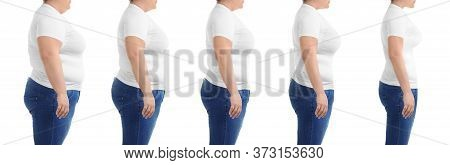 Collage With Photos Of Overweight Woman Before And After Weight Loss On White Background,closeup. Ba