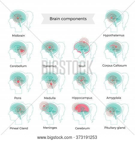 Set Of Vector Isolated Illustration Of Pain, Inflammation Or Tumorbrain Components In Woman Head. Hu