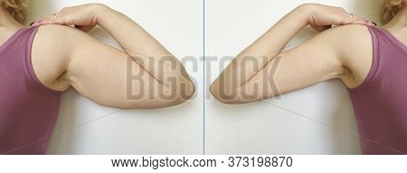 Female Hand Before And After Losing Weight