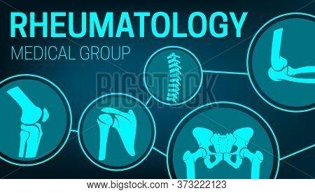 Rheumatology Medicine, Joints Xray, Rheumatic Disorder Medical Health Care. Vector Human Skeleton Pa