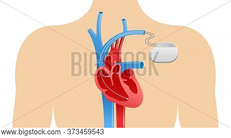Pacemaker Anatomical Scheme - Human Body Silhouette, Heart, Veins, Arteries And Heart Implant - Vect