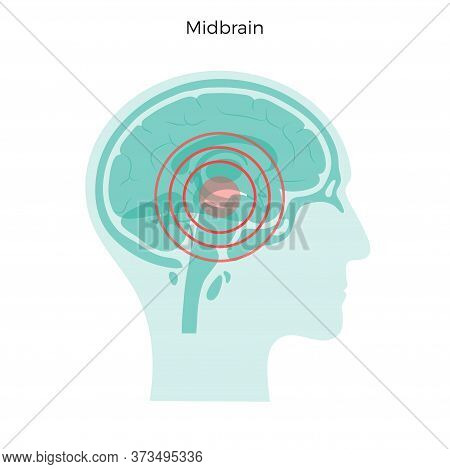 Flat Vector Isolated Illustration Of Pain, Inflammation Or Tumor In Human Adult Male Brain Anatomy.