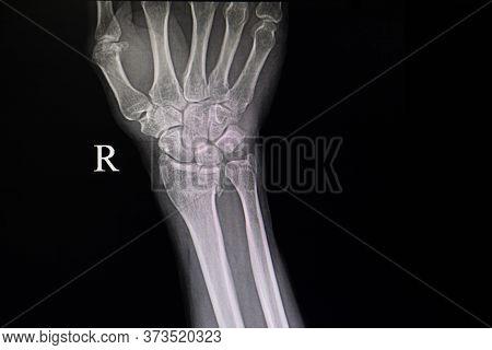 Xray Film Of A Patient With Fractured Wrist Bones. Showing Fractures Distal Radius And Ulna Bones.