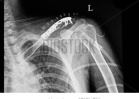 A Shouder Film Xray Of A Traumatic Patient With Fractured Left Clavicle After Plate And Screw Fixati